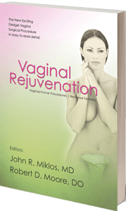 Vaginal Rejuvination book