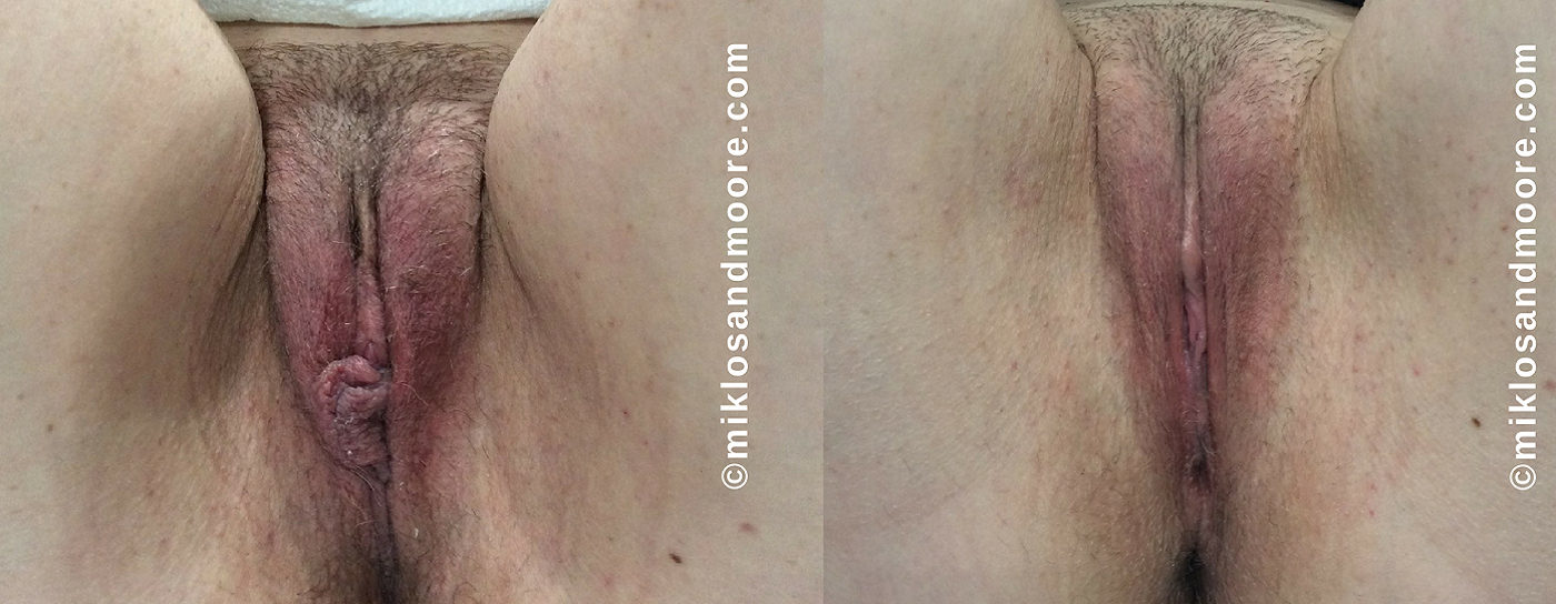 Immediately After Surgery 5