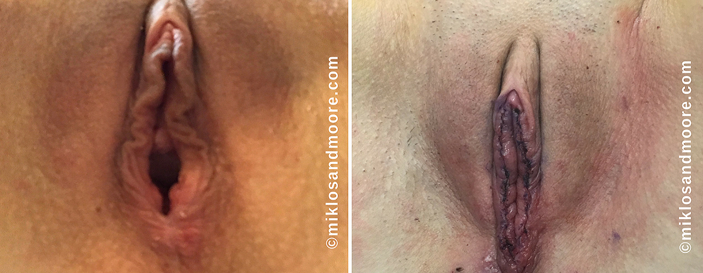 Immediately After Surgery 6