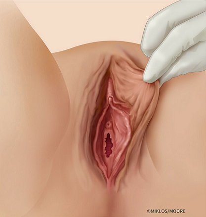 Labia Majora Hypertrophy- Excess Skin