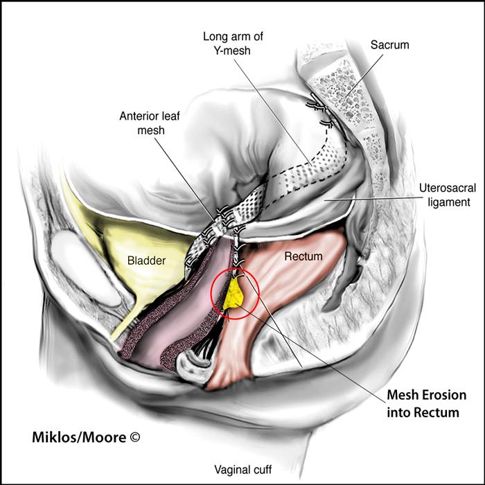 Sacrospinous fixationilleococcygeus suspension